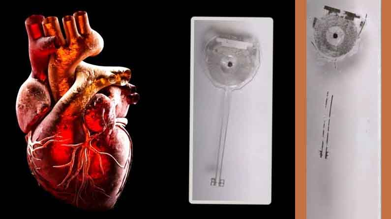 Tempo Maker: Scientists create battery-operated short-term pacemaker – Tempo Maker Worlds first tempo maker for coronary heart sufferers which is labored and not using a battery